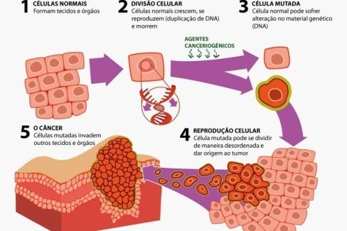 cancer_do_aparelho_digestivo